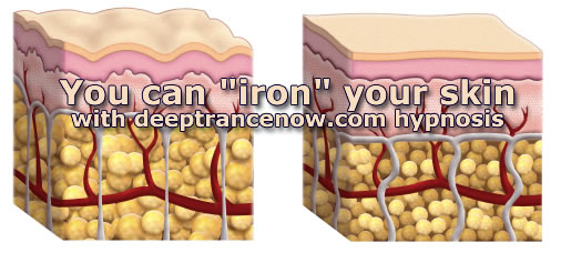 "You can ""iron"" your skin with hypnosis"