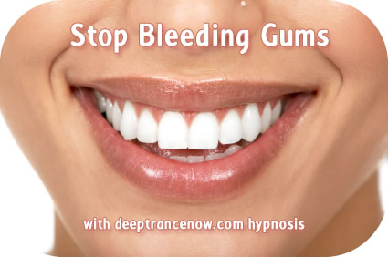 Stop Bleeding Gums | Hypnosis CDs and mp3 downloads Affirmations ...