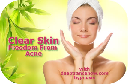 Clear Acne - hypnosis, subliminal, affirmations