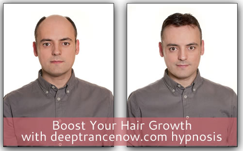 Hair loss? Boost Hair Growth Hypnosis CDs and mp3 downloads